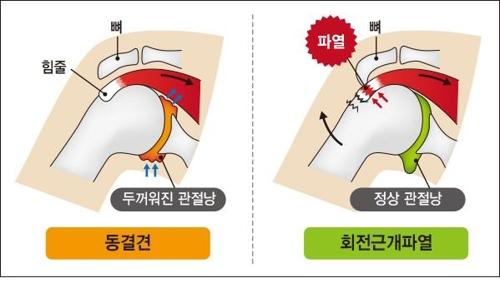 ▲ [강동경희대병원 제공=연합뉴스]