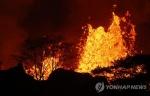 하와이 화산폭발 첫 중상자 발생…용암이 튀어 하반신 크게 다쳐