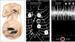 심장이 보내는 질병신호 잡는 '스마트폰 청진기' 나온다