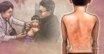 충남도 홍역 비상대비체제 돌입…의심환자 검사 중