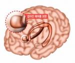 """""""뇌 일부 절제해도 정상 기억력 유지할 수 있다"""""""
